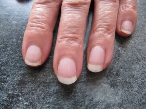 Natural Fingernails with FlexiNail